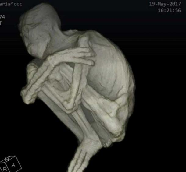 CAT scan image of the body