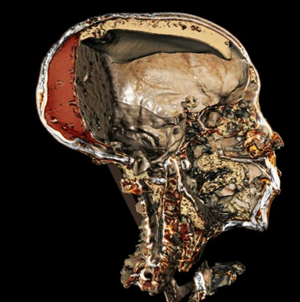 CT imaging shows a detailed view of King Tut's mummified skull – including the resin embalmers filled it with.