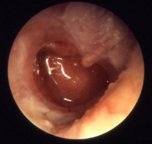 Chronic otitis media bacterial infections cause damage to the middle ear – as shown. (Welleschik / CC BY-SA 3.0)