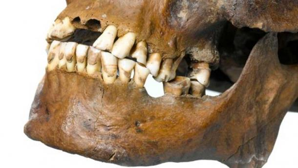 Deep grooves were found on the teeth which would have been caused by a repetitive action.  (MOLA Headland Infrastructure)