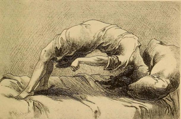 Demonic possession as a result of hysteria, 1858. (Fæ / Public Domain)