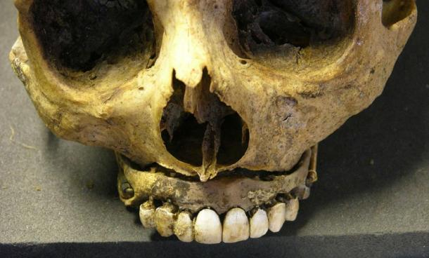 Dental prosthesis in a 19th century adult. Credit: Museum of London Archaeology