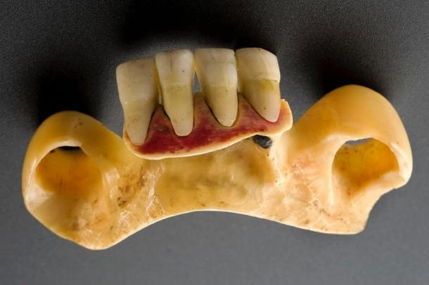 Denture with human teeth gathered from dead soldiers. Credit: Wellcome collection