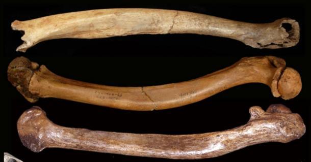 Developmental skeletal abnormalities in Pleistocene people: the Tianyuan 1, Sunghir 3 and Dolní V stonice 15 abnormal femora. (Erik Trinkaus)