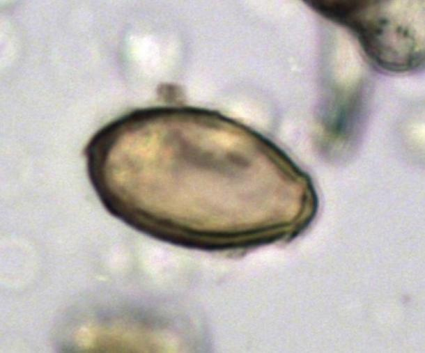 Egg of Chinese liver fluke discovered in the latrine at Xuanquanzhi, viewed using microscopy. Dimensions 29 x 16 micrometers. The Journal of Archaeological Science