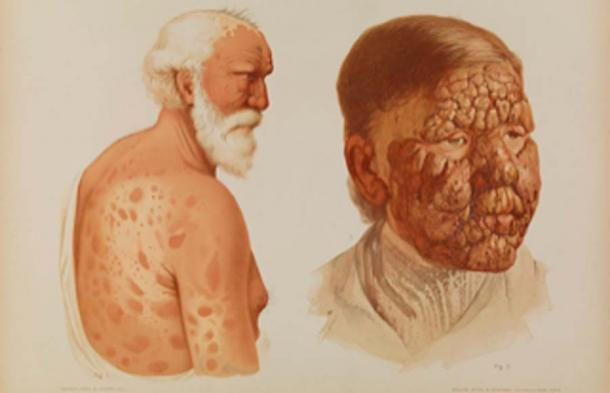 Elderly male with leprosy from 1889. (Fæ / CC BY-SA 4.0)