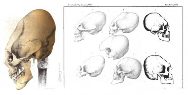 Elongated Skull from Crimea and other parts of the worlds, Baer 1860