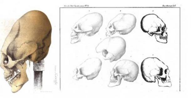 Elongated Skulls from Crimea, Baer 1860