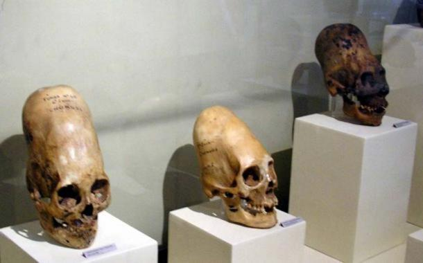 Elongated skulls on display at Museo Regional de Ica in the city of Ica in Peru