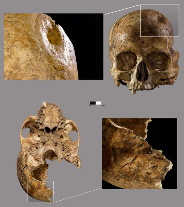 Evidence of trepanation and other injuries on the skull of the woman found at Dehesilla. (Daniel Garcia Rivero/PLOS ONE)