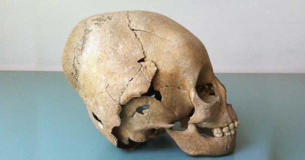 Example of a modified skull, a practice assumed to be Hunnic that may have been appropriated by local farmers.