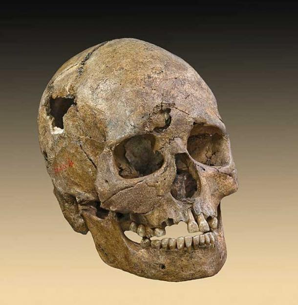 Exhibit A? Skull from the Téviec burial. This female died when she was 25 to 35 years old from a violent death with numerous skull fractures and bone lesions associated with the impact of an arrow.