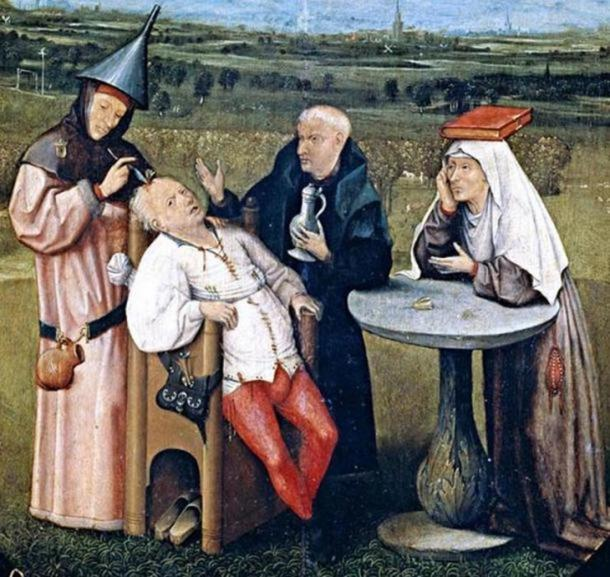 Detail from The Extraction of the Stone of Madness, a painting by Hieronymus Bosch depicting trepanation (c.1488–1516).