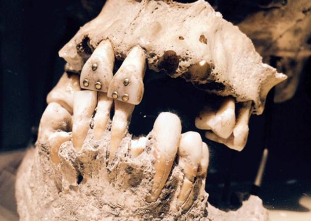 Gold studded teeth, Pre-Columbian Ecuador.