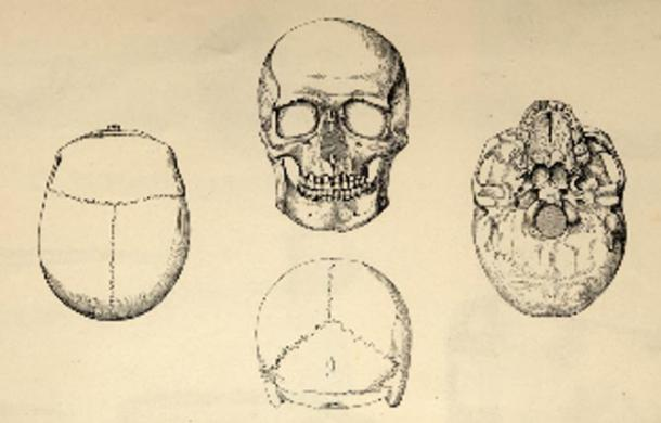 Drawings of the Gristhorpe Man's Skull, J. and W.C. Williamson