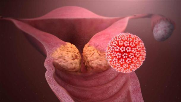 HPV is the most common virus that infects the reproductive tract and cervical cancer is by far the most common disease caused by it.