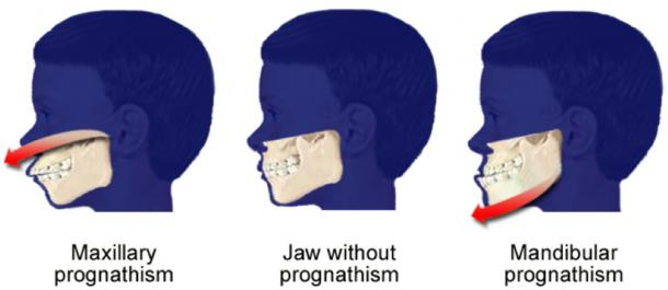 Habsburg inbreeding lead to mandibular prognathism. (Richardkiwi / Public Domain)