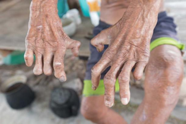 Hansen's disease, closeup of the hands of old man suffering from leprosy. (frank29052515 / Adobe Stock)
