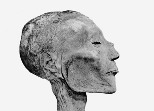Head of mummy of pharaoh Rameses V shows bumps suggesting he died of smallpox.