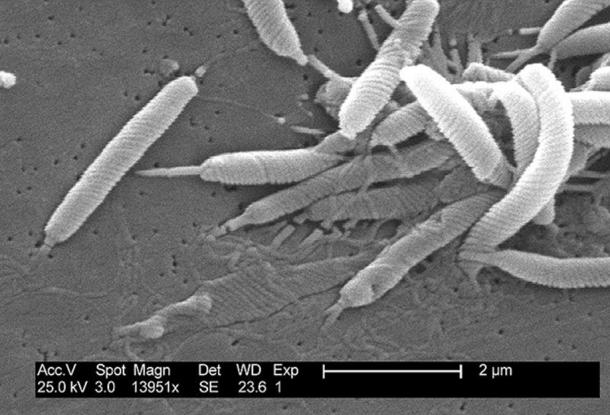 Scanning electron micrograph of Helicobacter bacteria.
