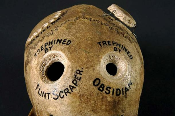 Human skull illustrating different methods of trepanation. (CC BY 4.0)