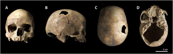 The Cova Foradada skull as viewed from different angles. (Image: International Journal of Paleopathology)