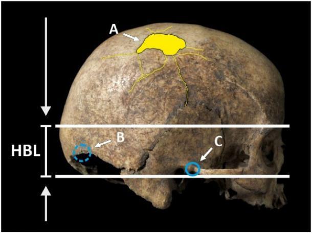 Location of cranial trauma on the Cova Foradada skull with respect to the hat brim line: (A) perimortem parietal fracture; (B) antemortem occipital fracture, on the opposite side; and (C) antemortem temporal lesion. (International Journal of Paleopathology)