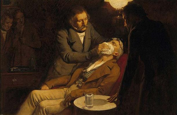Illustrates the first use of ether as an anesthetic in 1846 by the dental surgeon W.T.G. Morton. (catalogue.wellcome.ac.uk / Public Domain)