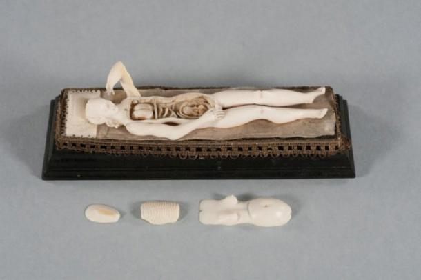 This is an Ivory manikin after removal of the abdominal and chest wall, ribs, and part of the uterus. Internal organs such as the lungs, intestines, as well as a fetus inside the uterus are visible. (RSNA)