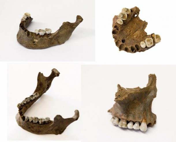 Jaw bones and teeth found at the site indicate the dead were not native to the area.