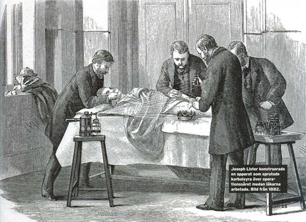 Joseph lister spraying phenol over the wound while the doctors were performing an operation. (Populär historia 2/2015 / Public Domain)