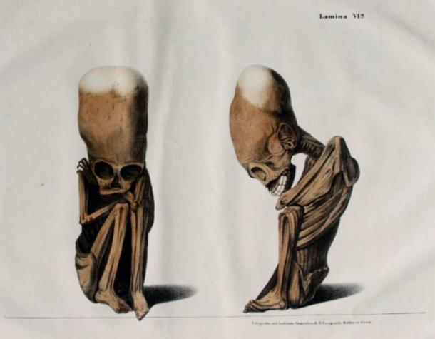 Elongated Skulls in utero: A Farewell to the Artificial Cranial Deformation Paradigm? Lithograph-elongated-skulls