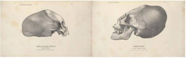 Elongated Skulls in utero: A Farewell to the Artificial Cranial Deformation Paradigm? Lithographs-by-John-Collins-elongated-skulls