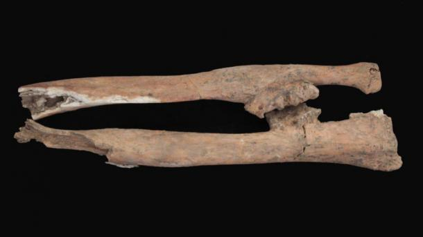 Lower arm bones from a man's skeleton excavated in Egypt display damage possibly caused by combat during a military uprising mentioned in writing on the famous Rosetta Stone. (R. Littman and J. Silverstein)
