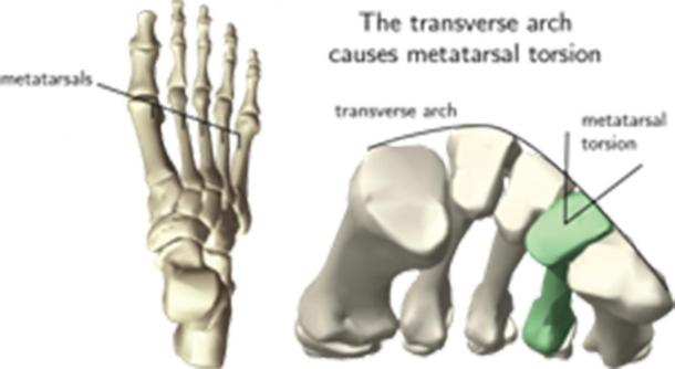 Measuring the transverse arch of the human foot using metatarsal torsion of a single bone. (M. Venkadesan / Nature)