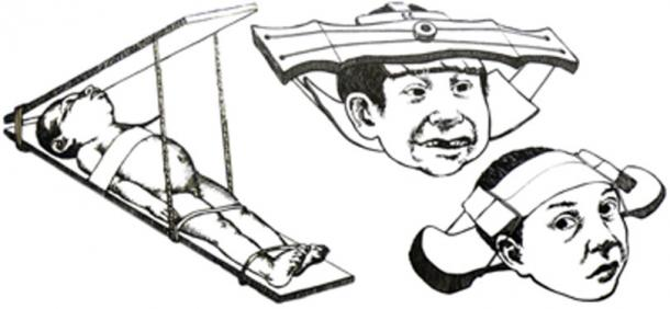 Methods that were used on children for intentional cranial deformation. (OgreBot / Public Domain)