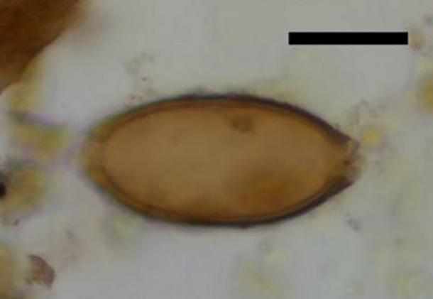 Microscopic egg of whipworm from Çatalhöyük, Turkey. Black scale bar represents 20 micrometres