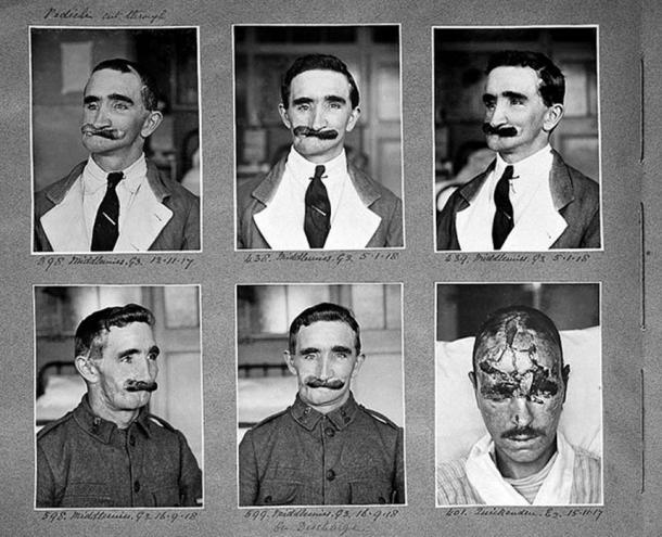 Middlemiss, facial wound, plastic surgery. (wellcomeimages.org / CC BY-SA 4.0)