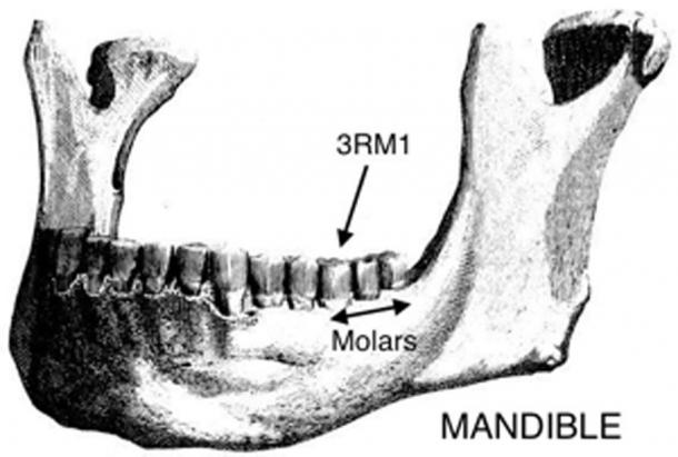 Modern human mandible (lower jaw) showing the three molars and the first molar that can have an extra root, the term 3RM1 being given to this trait. (Author Supplied / Public Domain)