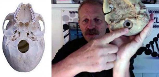 Left: Modern skull foramen. Right: L.A Mazulli points out foramen magnum on Paracas skull. (soul-guidance.com)