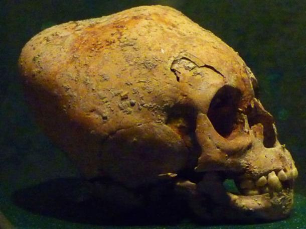 Modified Maya skull exhibited at the Museo Nacional de Antropología e Historia, Mexico.