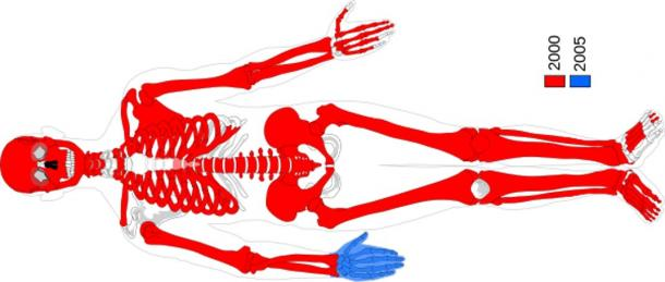 Moora's recovered body parts. Red parts were found in 2000 and blue parts were found in 2005 at Uchter Moor near Uchte, Lower Saxony, Germany. Dating to 764 -515 BC.