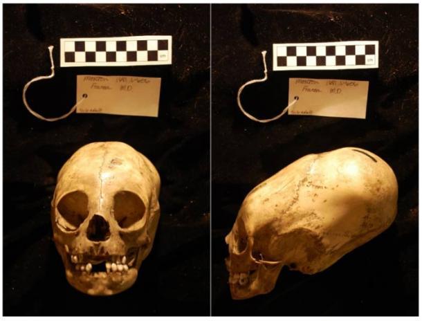 Morton Collection, Skull #1681