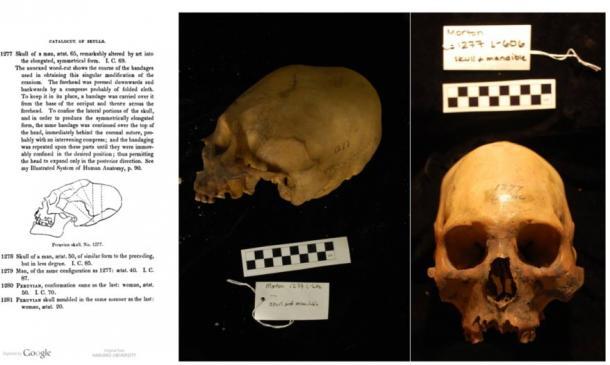 Morton Collection, Skull #1277
