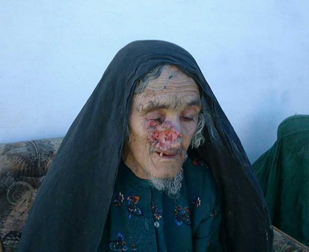 Mucosal leishmaniasis on woman in Shinkay, Afghanistan.