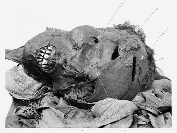 Mummified head of Seqenenre depicting his battle wounds. (Public Domain)
