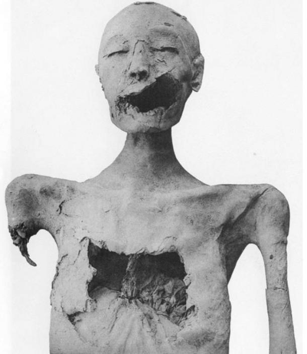 Mummy of the Younger Lady