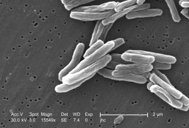 Mycobacterium tuberculosis germs