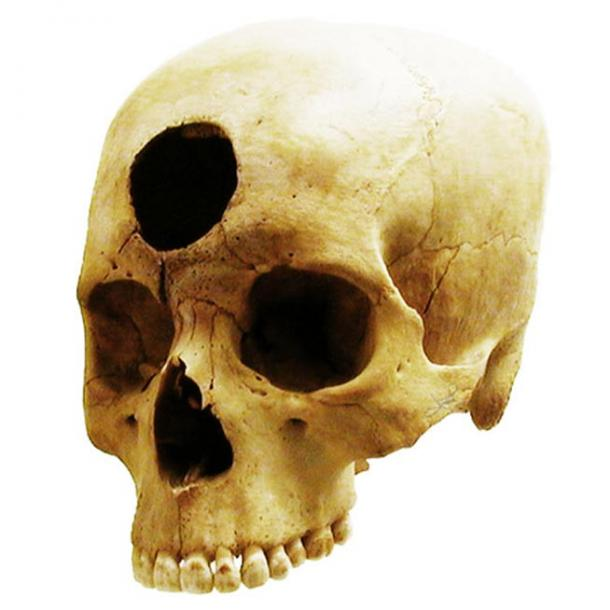 An example of a Nazca-Peruvian frontal trepanation from 2000 years ago.