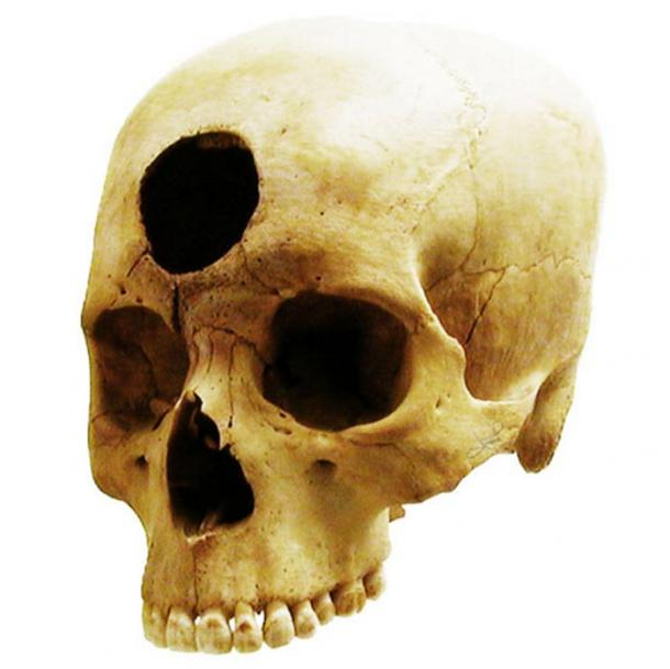 A Nazca-Peruvian skull operation from 2000 years ago presumably to relieve a front cavity inflammation.